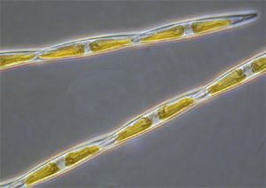 Image of diatom that produces domoic acid